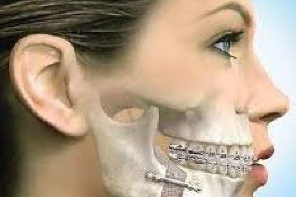 cirurgia-ortognaticaA0F5D16A-6F2E-4DFD-80D1-0EE744EBB1A2.jpg